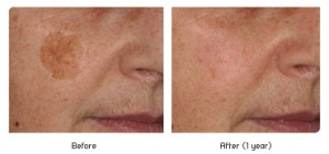 photo - Age spots before and after Laser treatment