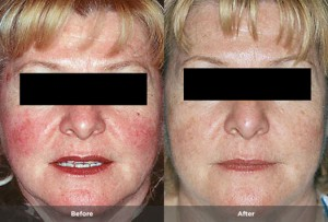 photos Rosacea before and after