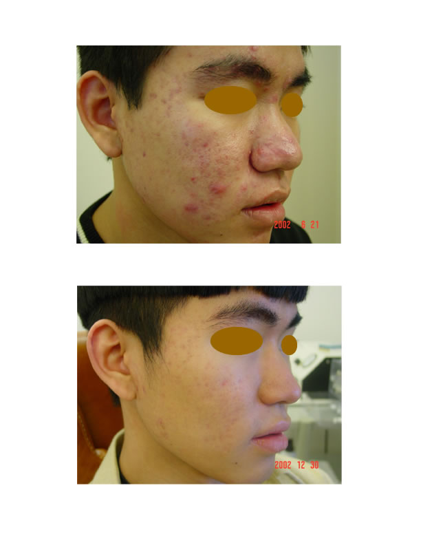 Before n After Acne Treatment pics