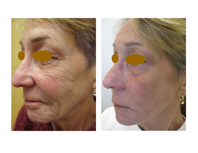 Skin Resurfacing Before and After Photos