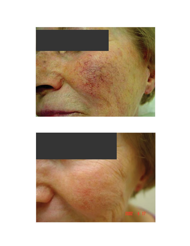 Facial Telangiectasia Natural Treatment