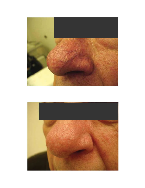 telangiectasia (nose vessels) 1