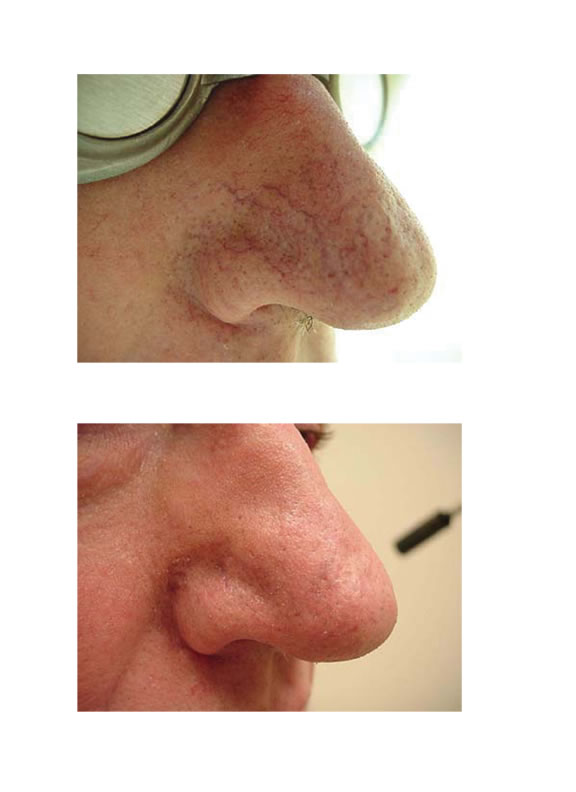 telangiectasia (nose vessels) 2